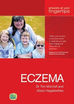 Eczema: The 'At Your Fingertips' Guide