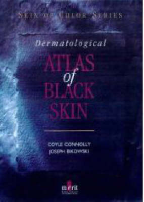 Dermatological Atlas of Black Skin