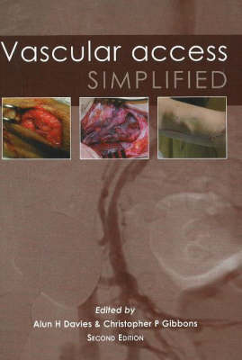 Vascular Access Simplified