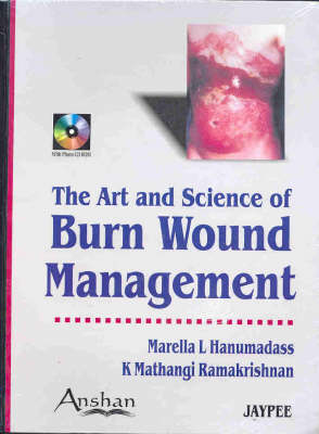 Art and Science of Burn Wound Management