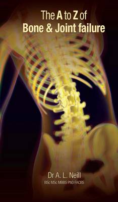 The A to Z of Bone and Joint Failure