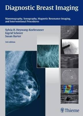 Diagnostic Breast Imaging: Mammography, Sonography, MRI and Interventional Procedures