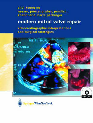 Modern Mitral Valve Repair: Echocardiographic Interpretations and Surgical Strategies