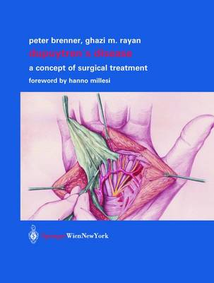 Dupuytren's Disease: A Concept of Surgical Treatment