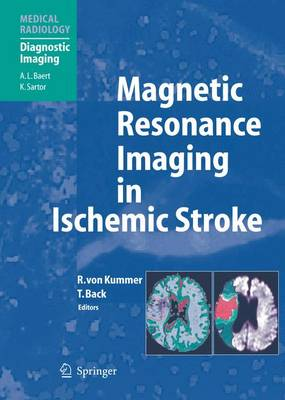 Magnetic Resonance Imaging in Ischemic Stroke