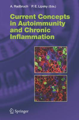 Current Concepts in Autoimmunity and Chronic Inflammation