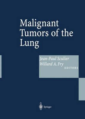 Malignant Tumors of the Lung: Evidence-Based Management