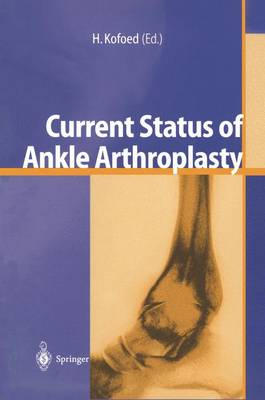 Current Status of Ankle Arthroplasty