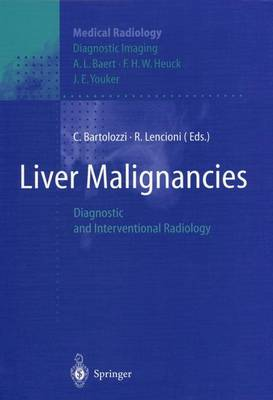 Liver Malignancies: Diagnostic and Interventional Radiology