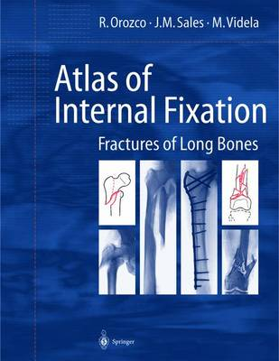 Atlas of Internal Fixation: Fracture of Long Bones : Classification, Statistical Analysis, Technique, Radiology