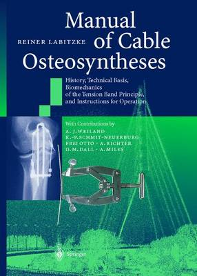 The Manual of Cable Osteosyntheses