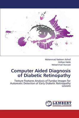 Computer Aided Diagnosis of Diabetic Retinopathy