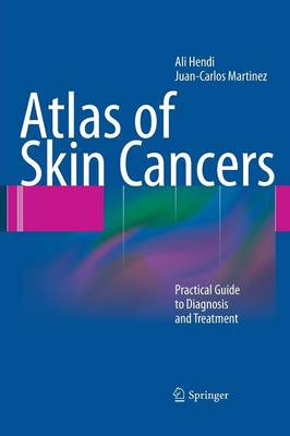 Atlas of Skin Cancers: Practical Guide to Diagnosis and Treatment