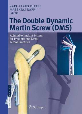 The Double Dynamic Martin Screw (DMS): Adjustable Implant System for Proximal and Distal Femur Fractures