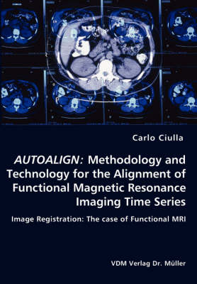 Autoalign: Methodology and Technology for the Alignment of Functional Magnetic Resonance Imaging Time Series