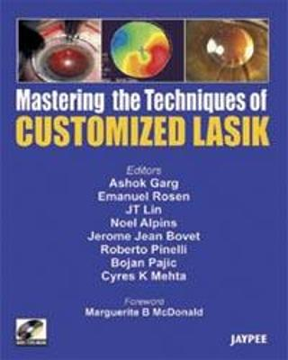 Mastering the Technique of Customized LASIK