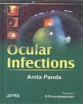 Ocular Infection