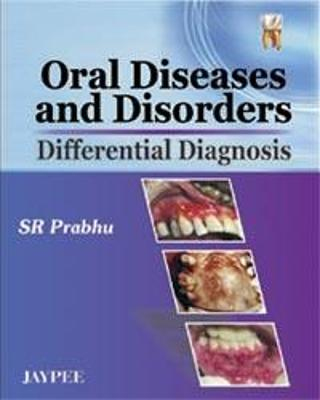 Oral Diseases and Disorders: Differential Diagnosis