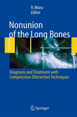 Nonunion of the Long Bones: Diagnosis and treatment with compression-distraction techniques