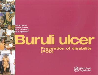 Buruli Ulcer: Prevention of Disability (Pod)