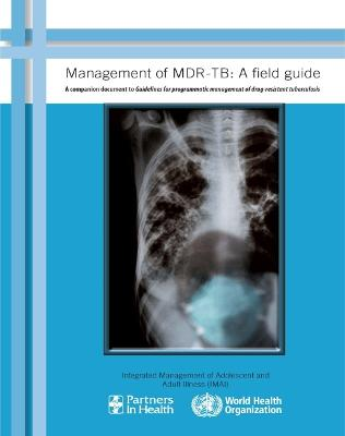 Management of MDR-TB: A Companion Document to Guidelines for Programmatic Management of Drug-resistant Tuberculosis: Field Guide