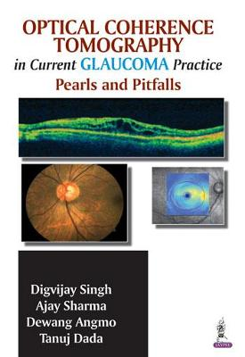 Optical Coherence Tomography in Current Glaucoma Practice: Pearls and Pitfalls