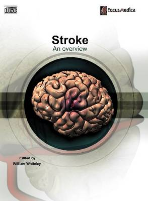 Stroke: An Overview