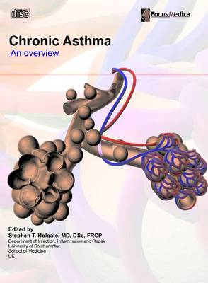 Chronic Asthma: An Overview