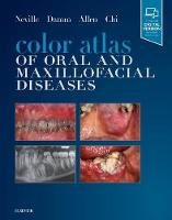 Color Atlas of Oral and Maxillofacial...