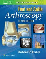 Foot & Ankle Arthroscopy