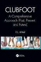 Clubfoot: A Comprehensive Approach...