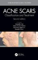 Acne Scars: Classification and...