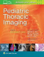 Pediatric Thoracic Imaging