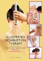 The Illustrated Moxibustion Therapy: ...