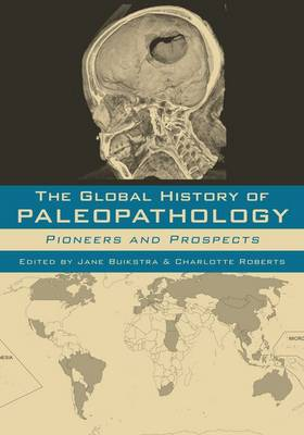 The Global History of Paleopathology: Pioneers and Prospects