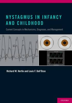 Nystagmus In Infancy and Childhood: Current Concepts in Mechanisms, Diagnoses, and Management