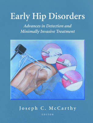 Early Hip Disorders: Advances in Detection and Minimally Invasive Treatment