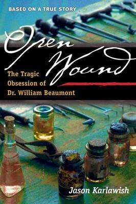 Open Wound: The Tragic Obsession of Dr. William Beaumont