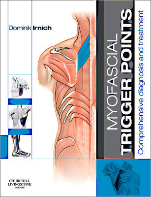 Myofascial Trigger Points: Comprehensive diagnosis and treatment
