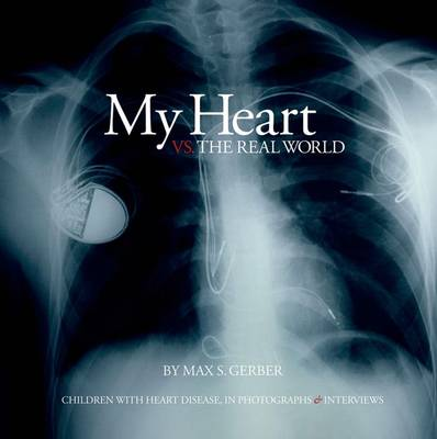 My Heart Vs. the Real World: Children with Heart Disease, in Photographs and Interviews
