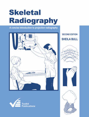 Skeletal Radiography: A Concise Introduction to Projection Radiography