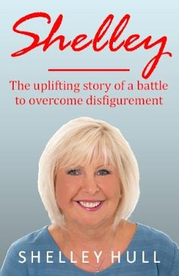 SHELLEY: The uplifting story of a battle to overcome disfigurement