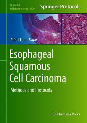 Esophageal Squamous Cell Carcinoma: Methods and Protocols