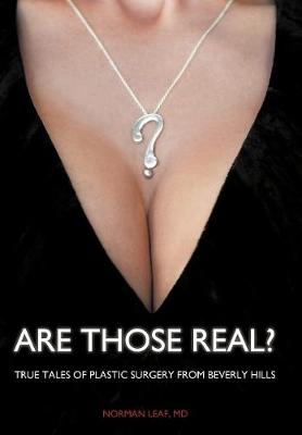 Are Those Real?: True Tales of Plastic Surgery from Beverly Hills