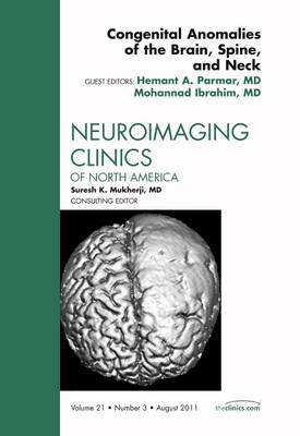 Congenital Anomalies of the Brain, Spine, and Neck, An Issue of Neuroimaging Clinics