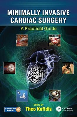 Minimally Invasive and Hybrid Cardiac Surgery: A Practical Guide