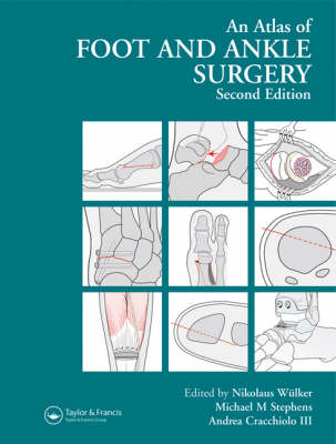 Atlas Foot and Ankle Surgery, Second Edition