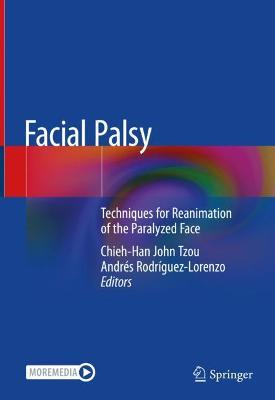 Facial Palsy: Techniques for Reanimation of the Paralyzed Face