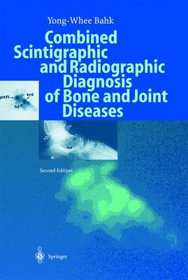Combined Scintigraphic and Radiographic Diagnosis of Bone and Joint Diseases