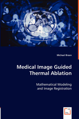 Medical Image Guided Thermal Ablation
